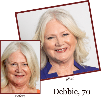 Debbie, Age 70 Before and After Results