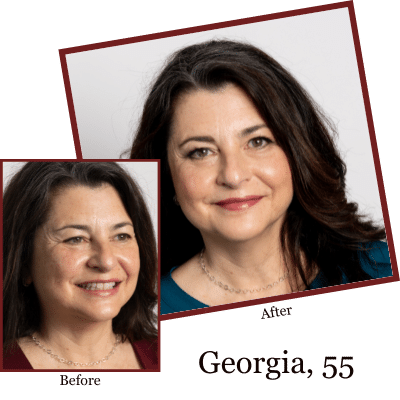 Georgia, 55, Before and After Results